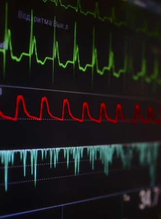 heart monitor: Cardiomonitor with a bright fragment of waves Stock Photo