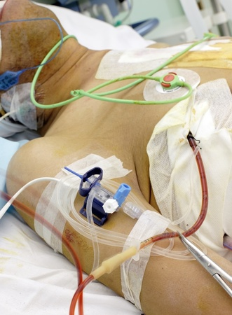 drenaggio: paziente in terapia intensiva Gravemente malato nel letto con i vari tubi e dei dispositivi medici