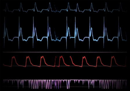 saturation: Screen medical monitor  The waves of blood pressure, blood oxygen saturation Stock Photo