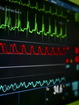 monitor in the ICU  The waves of blood pressure, blood oxygen saturation, ECG