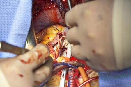 myocardium: Apri chirurgia plastica cuore di foto della valvola mitrale Documentario