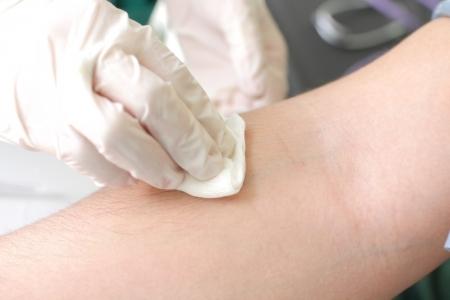 tampon: tamp�n en la mano de un paciente Foto de archivo