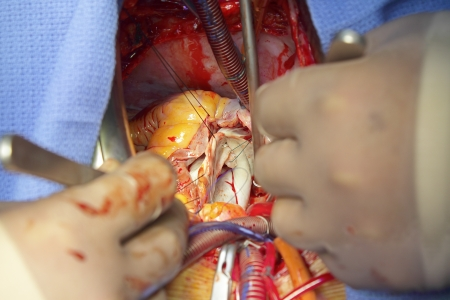 Cardiac surgery  close-up photos