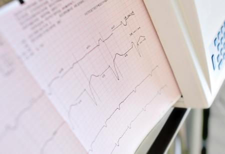 printing of electrocardiogram  photos Stock Photo - 14466504