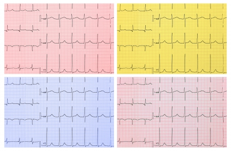 Medical background  ECG  4 types of toning  photo