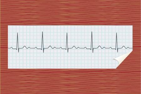 oscillate: ECG realistic illustration