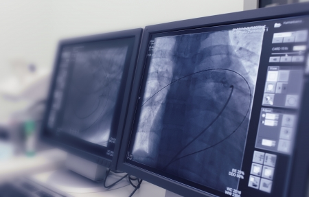 x ray equipment: monitors in the control room of X-ray department