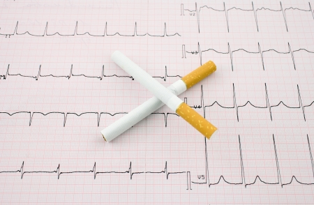 smoking issues: Smoking kills tsontsept  Two cigarettes in the form of a cross on a background of the electrocardiogram