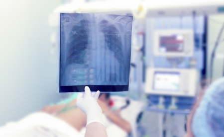 X-rays in the ICU  Doctor holding x-ray image of the chest Stock Photo - 15225170