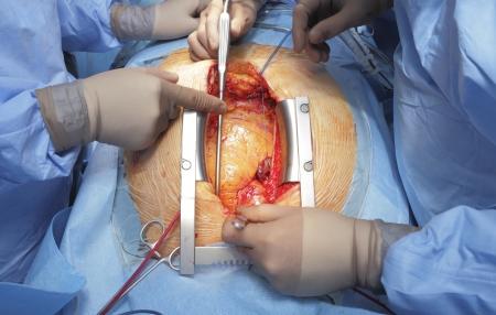 ataque cardiaco: Dos cirujanos de cirug�a cardiaca Foto de archivo