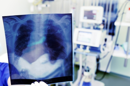 healthcare worker: Demonstration of an x-ray in clinic