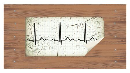 atrial: Old Electrocardiogram on a wooden background  Retro style  Stock Photo
