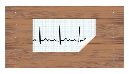atrial: ECG paper with curled angle on a wooden background  illustration