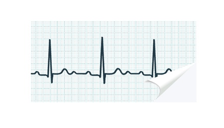 atrial: ECG paper with curled angle on white background  illustration