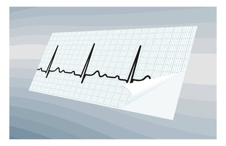 atrial: ECG paper on a blue abstract background  Simulated volume illustration