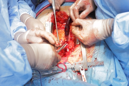 Surgical treatment  Operating wound and hand surgeons  photo
