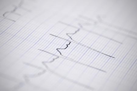 pulsating: ECG