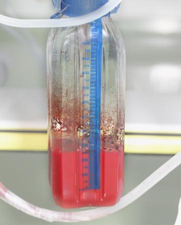 drenaggio: sangue nel serbatoio di drenaggio al letto del paziente