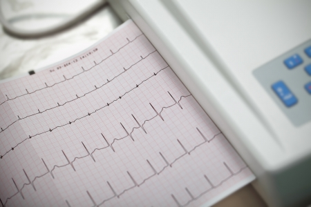 Cardiography  Method in medicine