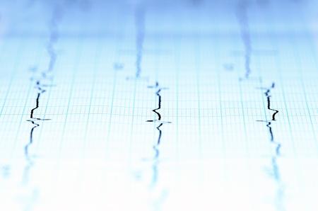 sismogr�fo: l�neas curvas sobre papel
