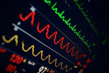 不同指數的醫療顯示器 版權商用圖片