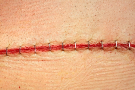 Modern surgical suture  photo