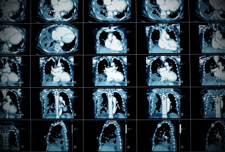 x ray equipment: Medical background  CT scan Stock Photo