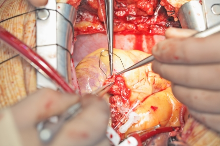 heart surgery: coronary surgery  Close-up photo, photo for professionals
