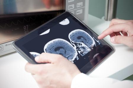 equipos medicos: médico examinar una TAC cerebral en una tableta digital Foto de archivo
