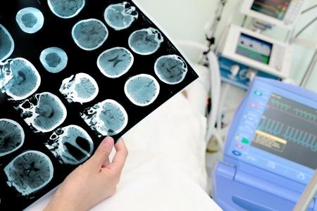 Tomografía computarizada de la cabeza en el hospital Foto de archivo