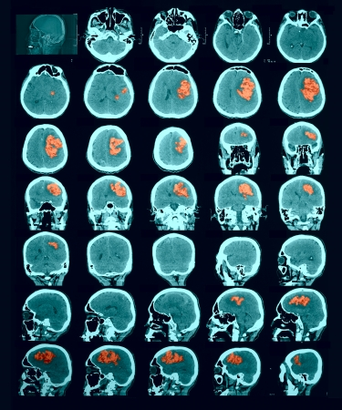 scan: CT scan of the brain. Hemorrhagic stroke. red us to identify the lesion focus. Documentary photography. Information for professionals. Stock Photo