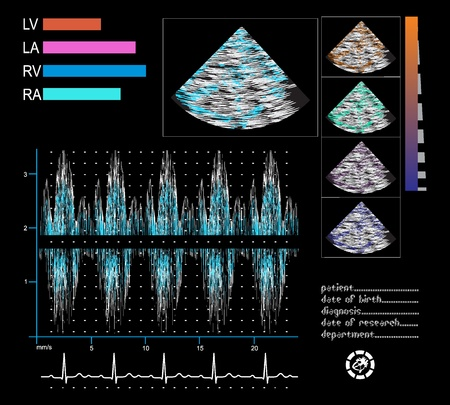 Ultrasound screen  Echo-cardiogram, phonocardiogram, electrocardiogram  Illustration