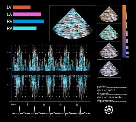Ultrasound screen Echo-cardiogram, phonocardiogram, elektrocardiogram