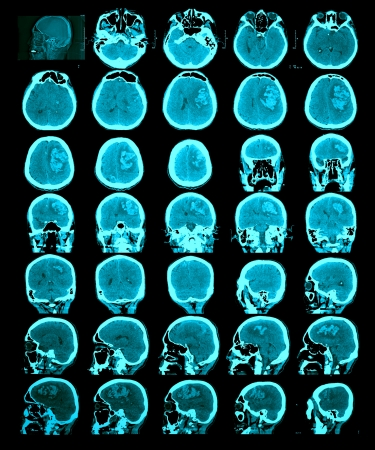 CT scan of the brain  Hemorrhagic stroke  Information for professionals  Stock Photo