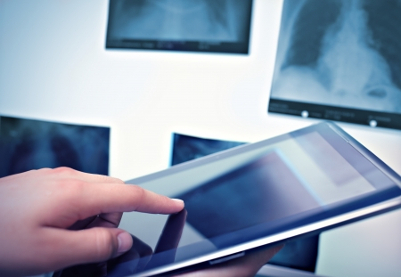 tablet pc in hand: Working with digital tablet in radiology