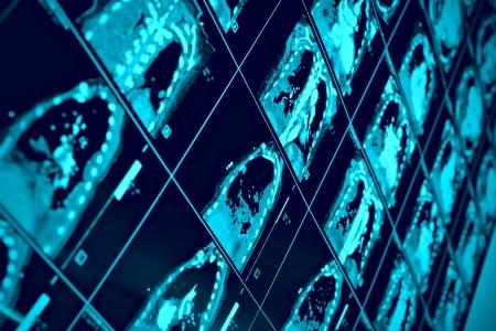 CT scan of thoracic segment. scientific background