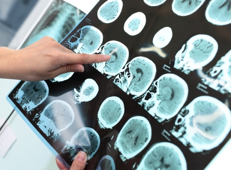 醫生檢查病人斷層掃描 版權商用圖片
