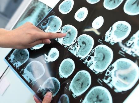 cerebro humano: El doctor examina al paciente tomograf�a