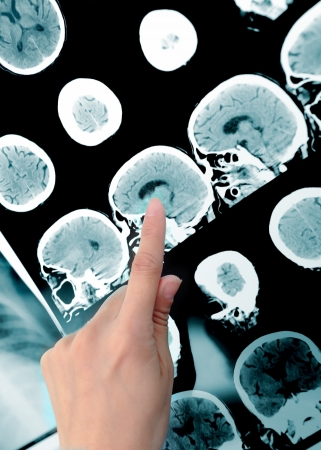tomography: point to the imaging area  Doctor and CT-scan  Stock Photo