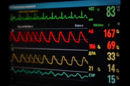 pulsating: monitor with curvesoxygen saturation, blood pressure, ECG, pulmonary artery pressure Stock Photo