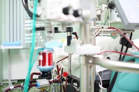 在ICU病房的醫療設備血液充氧ECMO治療的中間