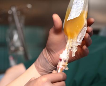 Transfusion of human plasma  Stok Fotoğraf