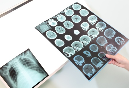 ct scan: Doctor with tomography and X-ray  Stock Photo