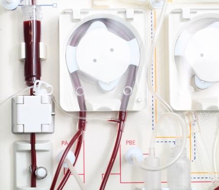hemodialysis machine at work  Close-up photo  Stock Photo