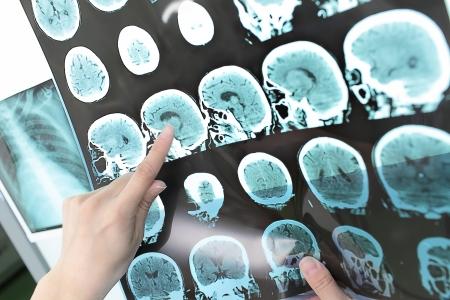醫生認為輸出CT掃描 版權商用圖片