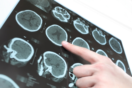 ct scan: CT scan of the patient Stock Photo