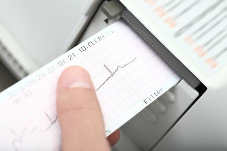 cardiogram and cardiograph photo