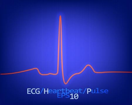 Normal complex of the ECG  Vector