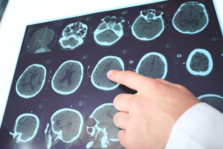 Doctor identifies on the fragment of CT image
