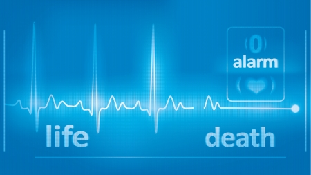 heart monitor: heart beats cardiogram and asystole on the medical monitor